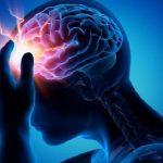 epilepsiya.jpg
